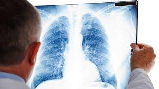 В Югре за неделю выявили 330 случаев заболевания пневмонией