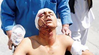 Атака ИГИЛ в Кабуле: убито 29 человек