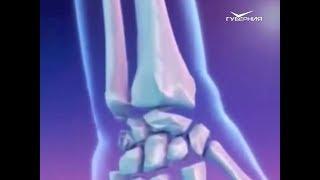Остеопороз. Школа здоровья