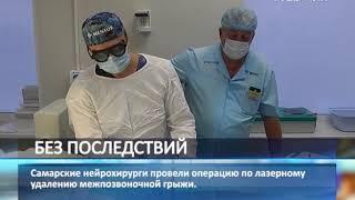 Самарские нейрохирурги провели уникальную операцию по лазерному удалению межпозвоночной грыжи