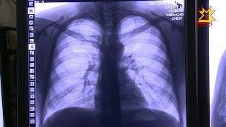 Стартовал месячник, посвященный Всемирному дню борьбы с туберкулезом.