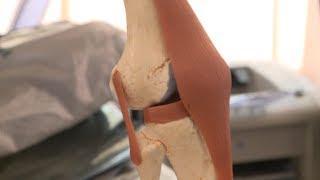 Пациентов со сложной деформацией суставов лечат на Ставрополье.