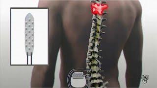 Mayo Clinic представляет: надежда для парализованных, но не только…