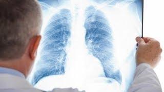 Югорчанин «привёз» туберкулёз из Подмосковья в округ