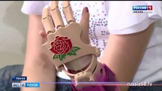 Пензенским детям привезли уникальные протезы из «Сколково»