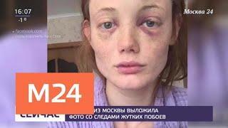 Модель из Москвы выложила фото побоев - Москва 24