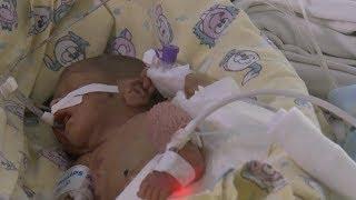 Уральские хирурги впервые исправили врождённый порок у младенца весом 500 граммов