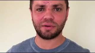 Ставрополец из группы «Градусы» Роман Пашков пострадал в ДТП под Москвой