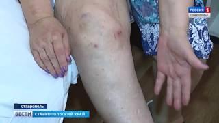 Ставропольские ортопеды переходят на новый уровень