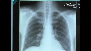В регионе растет число пациентов с туберкулезом с множественной лекарственной устойчивостью