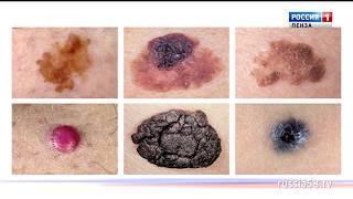 «Быть здоровым — здорово»: как предотвратить рак кожи