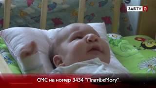 Вера Высоцкая, 2 месяца. Лимфангиома