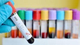 50 положительных тестов: югорчане проверили свой ВИЧ-статус