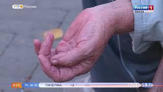 В Пензенской области ежегодно регистрируется около 9 тыс. инсультов