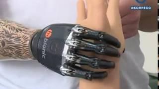 Пензенцу установили «руку Терминатора»