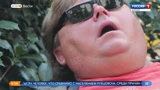 Алтайский край возглавил рейтинг регионов по числу пациентов с ожирением